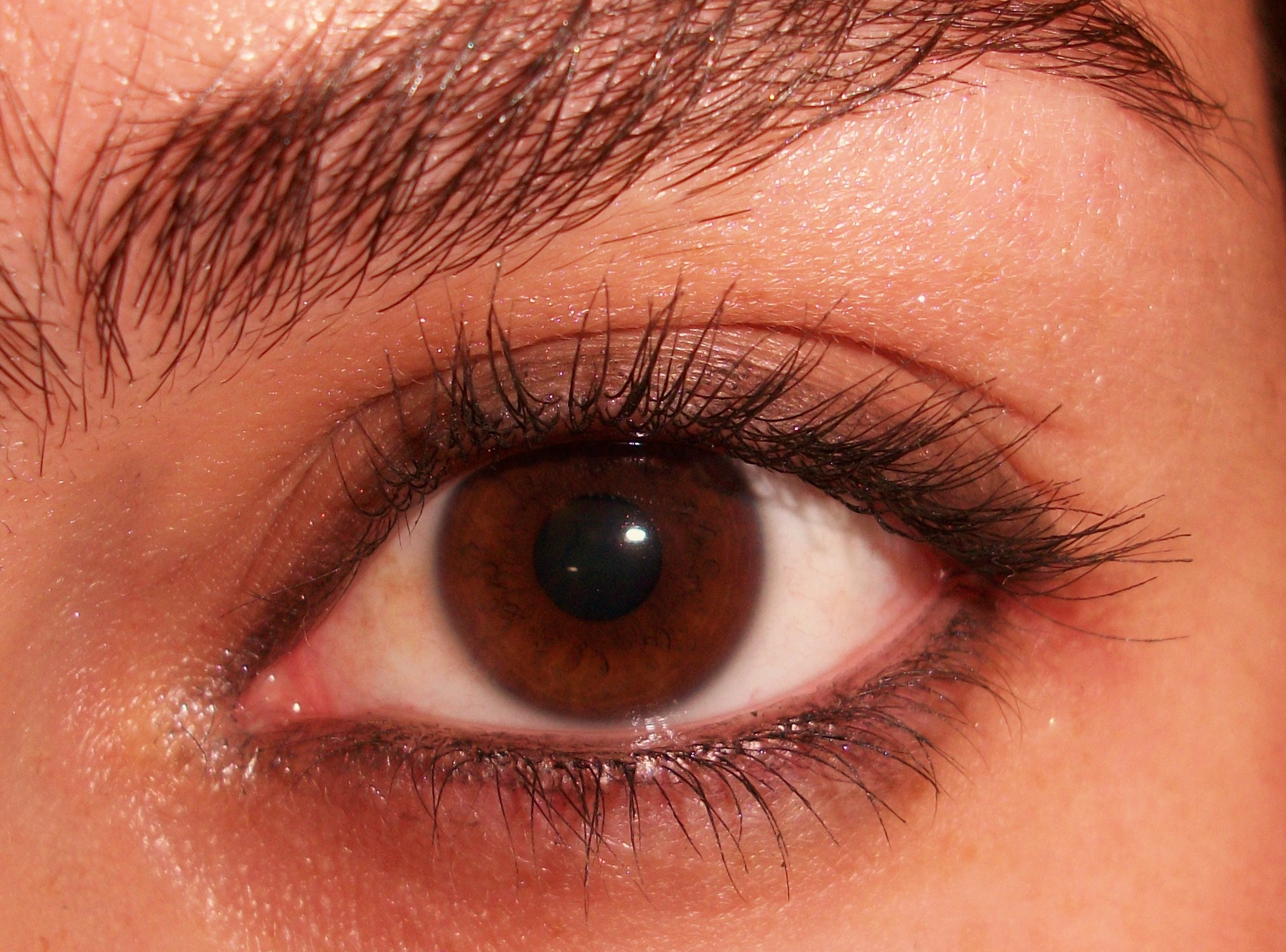 Remédio eficaz de sardas e pigmentação
